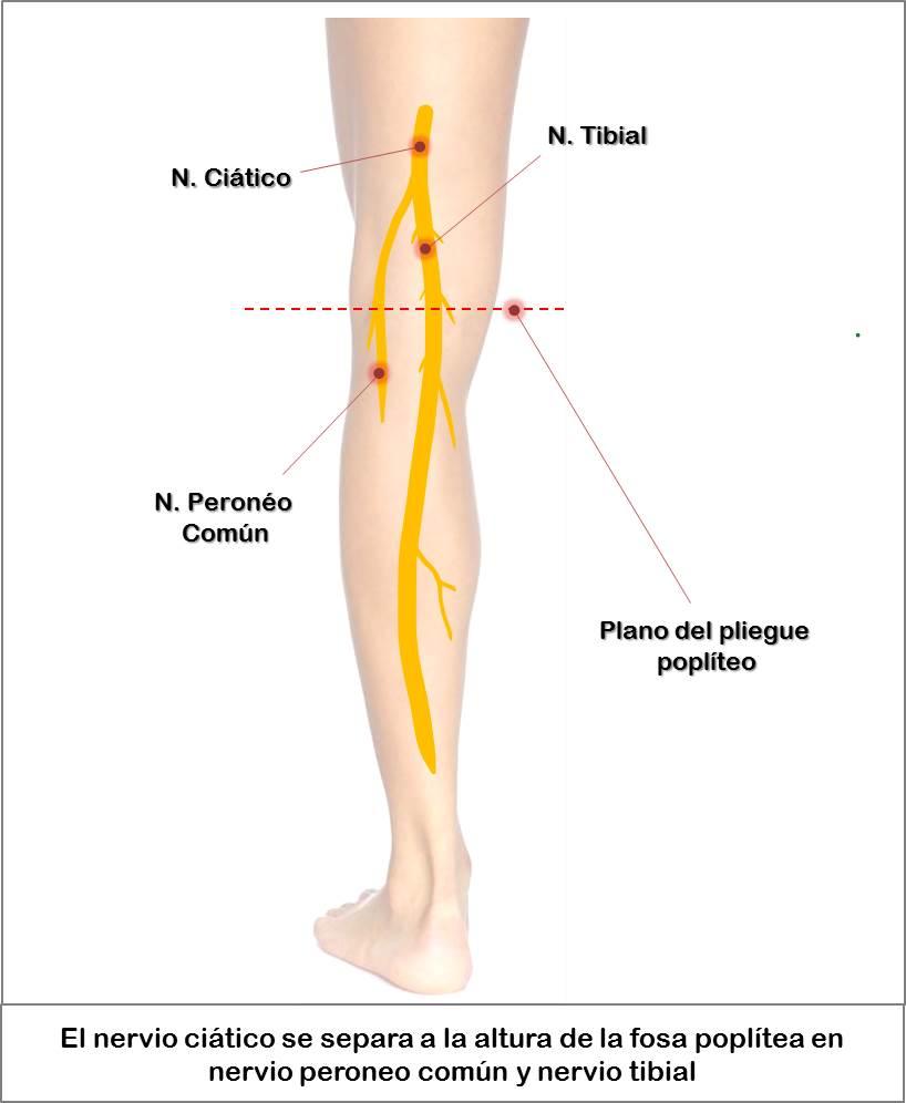 Bloqueo del nervio ciático: Vía de acceso lateral en la fosa ...