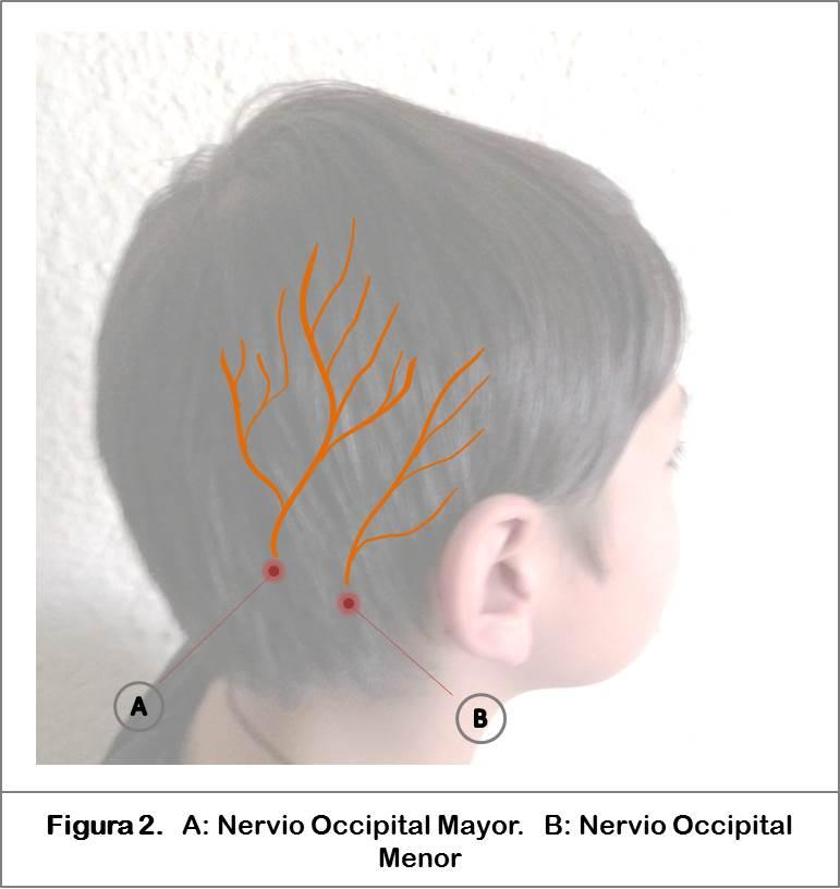Bloqueo de Escalpe | Anestesia Pediátrica Fundación HOMI